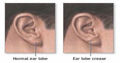 Earlobes are generally smooth regardless of size, color, shape and thickness.   However, some people have a crease in their earlobe.   Th...