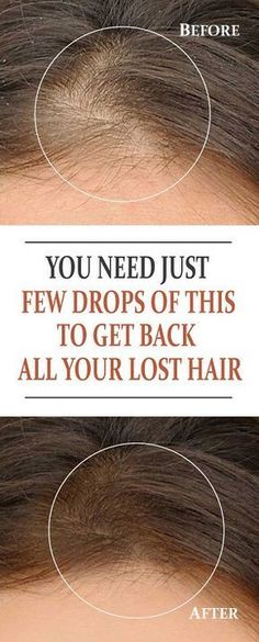 You Need Just Few Drops of THIS to Get Back All your Lost Hair Your hair is said to be your crowning glory, and it's normal to want to improve your hair if it's not to your satisfaction Hair Remedies For Growth, Hair Loss Remedies, Hair Loss Reasons, Hair Pack, Male Pattern Baldness, Regrow Hair, Hair Regrowth, Hair Health, Beauty Care