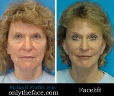 Facelift by Dr. Richard Parfitt Madison, WI