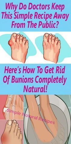 Bunions are actually salt deposits. Their formation is triggered by influenza, tonsillitis, gout, poor metabolism, improper nutrition, rheumatic infection and wearing uncomfortable shoes.    B…