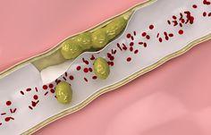 """Remedios naturales para limpiar las arterias y eliminar el colesterol """"malo""""."""