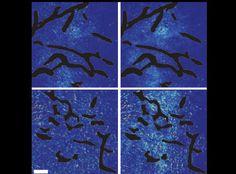 Cancer Study Reveals Limitations When Using Angiogenesis Inhibitors and Nanomedicines