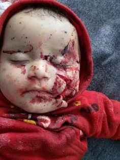Russian crimes in syria Syrian Children, Save The Children, Syrian Civil War, Bless The Child, Innocent People, World Peace, Faith In Humanity, History Facts, My Heart Is Breaking