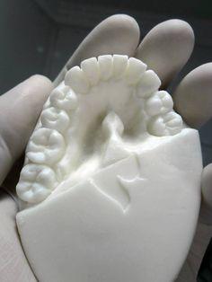 Dentadura en jabón
