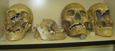 """These giant skulls are stashed-away, somewhat """"out-of-sight, out-of-mind"""", at the Humbolt Museum in Nevada. They are the remains of the last of the """"Red Headed Giants""""of the area, who were trapped inside Lovelock Cave by the Paiute Indians, then suffocated to death by smoke from fires lit at the mouth of the cave. Some skulls of the large boned & tall stature people, recovered from the cave, had red hair."""