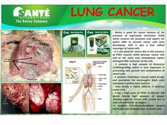 """According To norbert Herzog and David Niesel in their post in The Galveston County THE DAILY NEWS """"Smoking combined with your DNA increase lung cancer risk """" They mention further that Smoking isn'. Barley Benefits, Lung Cancer, Starting Your Own Business, Text Me, Natural Cures, Lunges, Dna, Health Benefits, The Cure"""