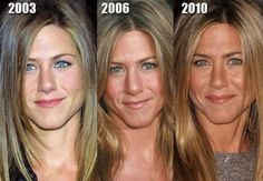 Beautiful Nose Job For The Gorgeous Jennifer Aniston  http://www.ourexperiencecounts.com/cosmetic-surgery-australia/nose-job-sydney/