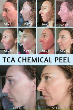 + epid. acne chemical facial peel