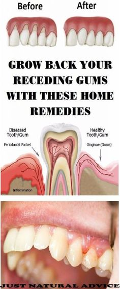 Gingivitis, usually known as gum disease,  is a dental issue characterized by symptoms like constant