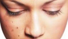 Ini Dia Cara Jitu Mengikis Flek Hitam di Wajah yang bisa Anda lakukan dengan cara yang mudah, aman, alami tanpa efek samping.