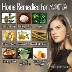 HOME REMEDIES FOR ACNE.