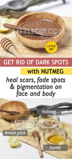 GET RID OF DARK SPOTS with NUTMEG – LITTLE DIY Dark spots are the number once skin problem most of use face. Getting rid of dark spots is not as easy as getting rid of a pimple; they are stubborn and need… Sun Spots On Skin, Black Spots On Face, Brown Spots On Hands, Dark Spots, Aloe, Spots On Forehead, Sunspots On Face, Baking Soda Shampoo, Skin Problems