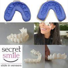 Veneers removeable veneer dentures flippers pontics teeth sending out lots of self impression kits today teeth teethwhitening smile solutioingenieria Gallery