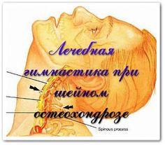 Упражнения при шейном остеохондрозе