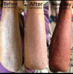 Amazing results after one day with Seacret. Salt and oil scrub and body butter! Www.seacretdirect.com/Amytough