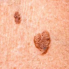 here are so many different skin tag elimination. Yet go just for the secure ones, with the advice of specialists.
