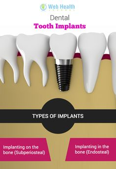 #Dental implant treatment is a process through which artificial tooth is placed into your jaw to clutch a bridge, #crown, #denture, or a replacement tooth. You can replace a natural tooth and its implant.