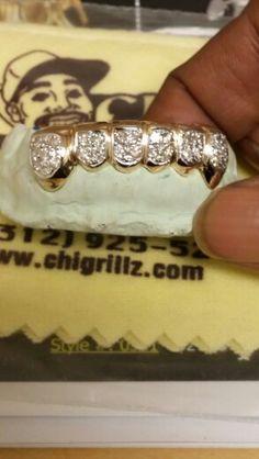 Mouth Grills, Grills Teeth, Diamond Grillz, Diamond Teeth, Gangsta Grillz, Hot Bling, Tooth Gem, Gold Grill, Gold Teeth
