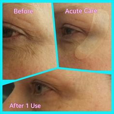 Acute Care - the newest product from world renowned dermatologists Dr. Rodan + Dr. Fields - want to learn more? Let's chat https://katiecockrell.myrandf.com