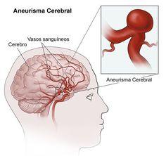 ► Aneurisma cerebral, causas e fatores de risco