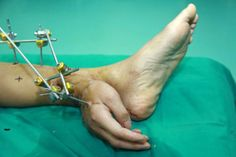 A man had his hand fixed to his ankle for a month before doctors successfully reattached it to his arm.
