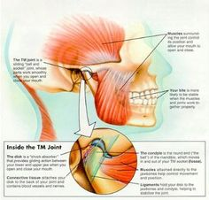 Temporomandibular joint disorder (TMJ) causes jaw pain.sometimes I can't tell the difference in parotid pain and TMJ. Jaw Pain, Trigeminal Neuralgia, Massage Benefits, Invisible Illness, Massage Therapy, Tmj Massage, Physical Therapy, Chronic Pain, Chronic Fatigue