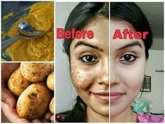 How to Give Your Skin a Boost with Potato Juice | TipHero