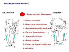 Zones sensibles à la pression 7 – Tubercule du grand adducteur 1 – Grand trochanter 1 1 2 – Branche ischio pubienne 2 3 – Épine iliaque antéro supérieure.