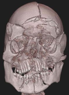 Facial Fractures:  post-mortem CT scan with 3D reconstruction; extensive facial fractures due to a jump from 40m bridge, landing face down. (Source: anilaggrawal.com)