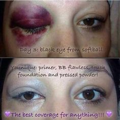 Amazing results and coverage with the Younique foundation range, our products are designed to help cover bruises, scars and cuts. One of the ways that Younique helps to protect and help women who struggle with domesitc abuse. Click me to buy yours.