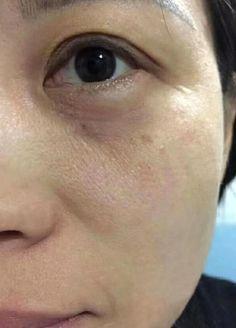 거짓없는 즉각적인 리프팅 및 안티링클효과 부여 미세먼지에 지친 피부 진동아이크림의 효과 : 네이버 포스트