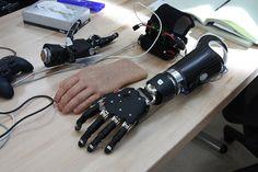 The Modular Prosthetic Limb