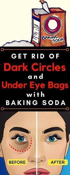 Remove Dark Circles & Under Eye Bags & Baking Soda & Lemon!!! - Way to Steal Healthy