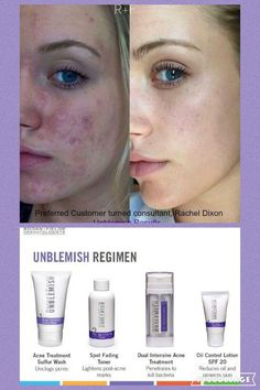 Rodan + Fields Unblemished. Say adios to Acne!