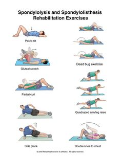 Spinal Osteoarthritis (Spondylosis) exercises - I also recommend hip openers like Pigeon to relieve the pinch of spondylolisthesis.