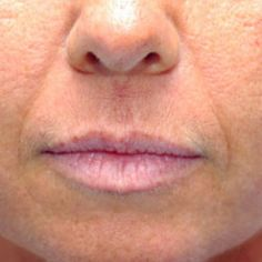 If you have a browlift in Beverly Hills, you'll basically have another type of procedure done to smooth out those wrinkles. Please visit : http://www.niptucksurgeon.com/face-lift-beverly-hills