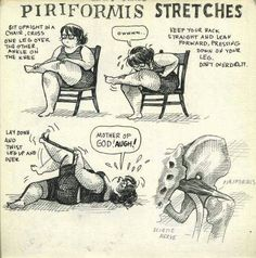 Piriformis syndrome- pn in low back and buttock refered down the leg.. symptoms include buttock pn with sitting more than 15 min