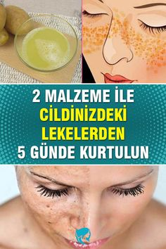 Hair Jazz, Brown Spots On Skin, Best Moisturizer, Facial Scrubs, Homemade Skin Care, How To Get Rid, Body Care, Beauty Hacks, Hair Beauty