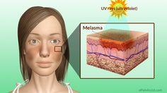 Melasma or Chloasma or Mask of Pregnancy  Read: http://www.epainassist.com/skin/melasma-or-chloasma-or-mask-of-pregnancy