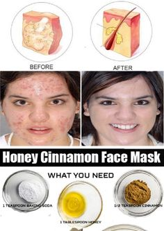 Honey and Cinnamon Face Mask for Cystic Acne - 11 Anti-Inflammatory DIY Acne Remedies to Get Clean Skin in A Month
