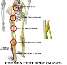 Foot Braces For Foot Drop