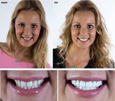 """""""Ik ben super tevreden van het resultaat: de imperfecties die ik had aan mijn tanden zijn weggewerkt en ik heb nu een mooie, witte en natuurlijke glimlach! Ik glimlach nu voluit omdat ik weet dat ik nu prachtige tanden heb."""" - """"J'adore mon nouveau sourire"""""""