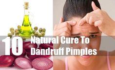 Dandruff Pimples #naturalskincare #healthyskin #skincareproducts #Australianskincare #AqiskinCare #SkinFresh #australianmade
