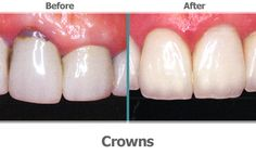 A dental crown is a covering that encases the entire tooth surface restoring it to its original shape and size.  A crown procedure usually requires two appointments.