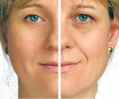 15 Useful Home Remedies for Removing Age Spots
