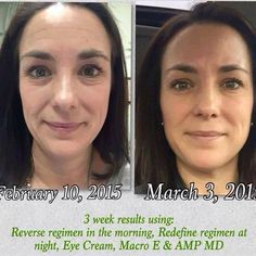 Results are addicting and Nicole Rhodes has seen some beautiful changes in her skin with excellent results! Nicole first started with Unblemish which cleared her skin up. Then she jumped over to Reverse and Redefine. She's a product lover, that's for sure!! Plus she's using two products I won't go without now - The Macro Exfoliator and Redefine eye cream. Of course I love the whole Redefine regimen too. When you find products that help your skin improve, work well together, ... See More