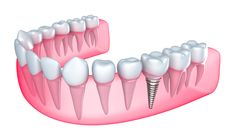 Dental implants are the newest tooth replacement option on the market, and they've proven themselves to be a highly effective means of replacing lost teeth. These titanium-retained false teeth offer several advantages over dentures, and 40 years of research have found them to be completely safe. Here are just a few reasons why investing in…
