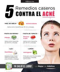 Hábitos Health Coaching   5 remedios caseros contra el Acné