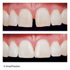 """Have you heard of """"Porcelain Veneers?"""" They have become highly popular because of their accessibility, affordability, and the fact that they can immensely approve one's appearance for the better. The end result of porcelain veneers are beautiful teeth, free of stains, chips, gaps, and other noticeable imperfections. Porcelain Veneers can immediately make you look years younger. But simply, it's a movie star smile that is available to everyone! #dental2000nj"""