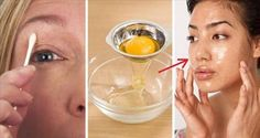 And that ingredient is Egg. Believe me you can use it for any application on your skin and it really works very well ANTI-WRINKLE MASK Ingredients: 1 egg. 1 glass. 1 brush. Toilet paper. Make-up removers. Preparation and application: Separate the white of the yolk and beat the white with a fork to activate its …